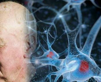 Нервные клетки и пожилой человек